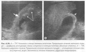 Выбор метода дигностики при гепатобилиарной патологии
