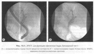 Клиническая картина заболеваний желчного пузыря и сфинктера Одди