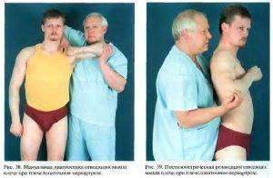 Синдром плечелопаточного периартроза