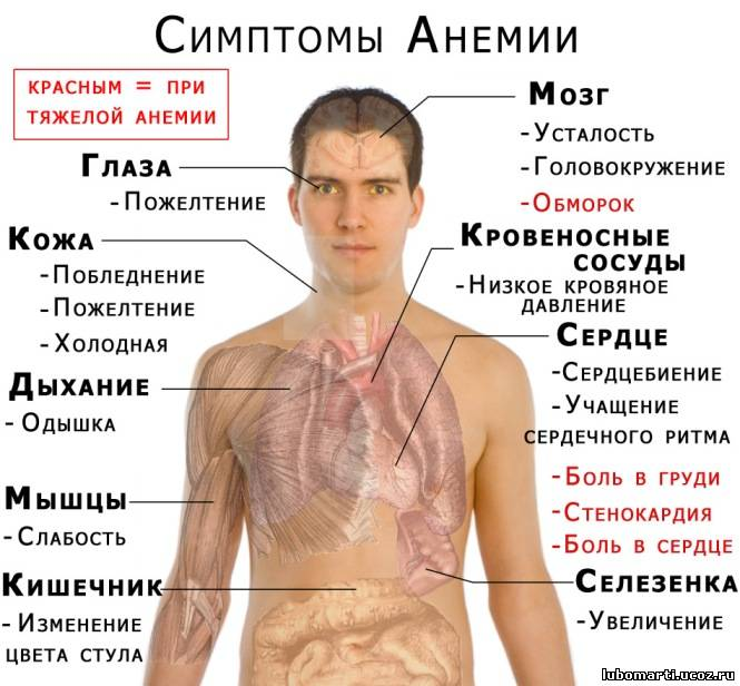 Как определить 1 степень анемии. Симптомы и лечение » Beauty and ...